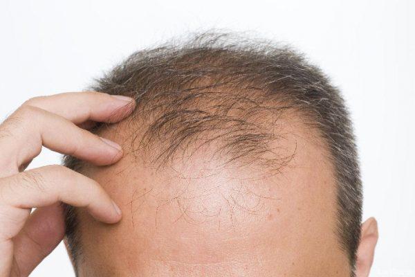 DHT - łysienie androgenowe