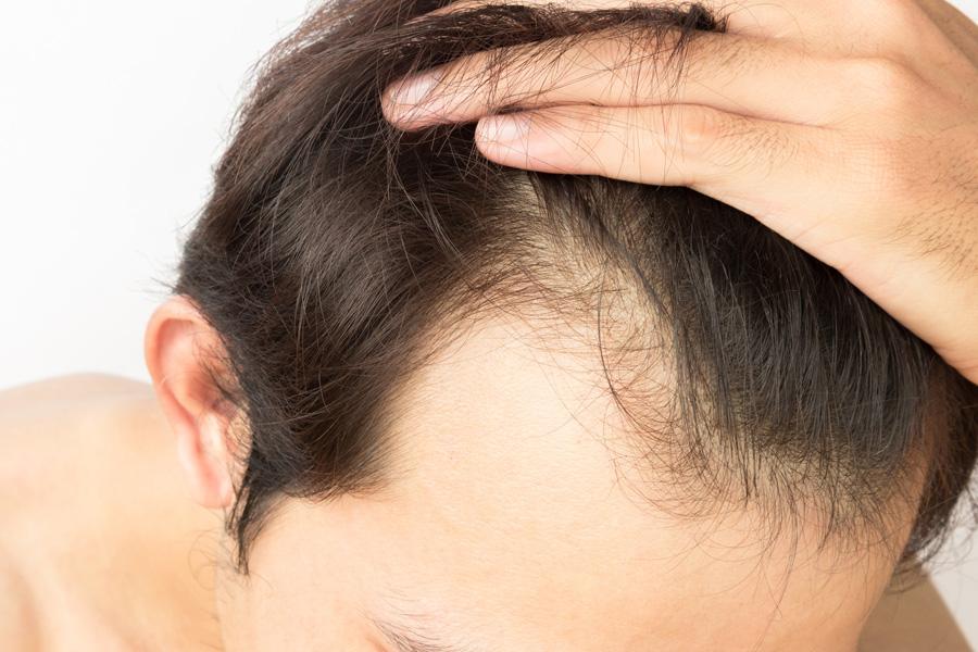 łysienie androgenowe - objawy i przyczyny