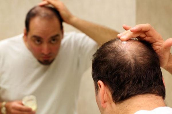 wypadanie włosów - mężczyźni